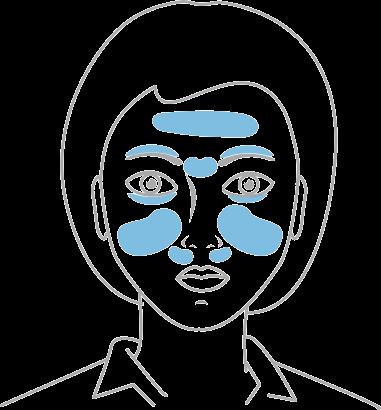 twarz-wystepowanie